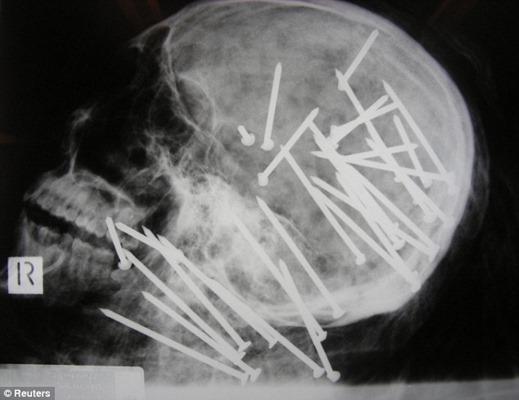 x-ray1.jpg